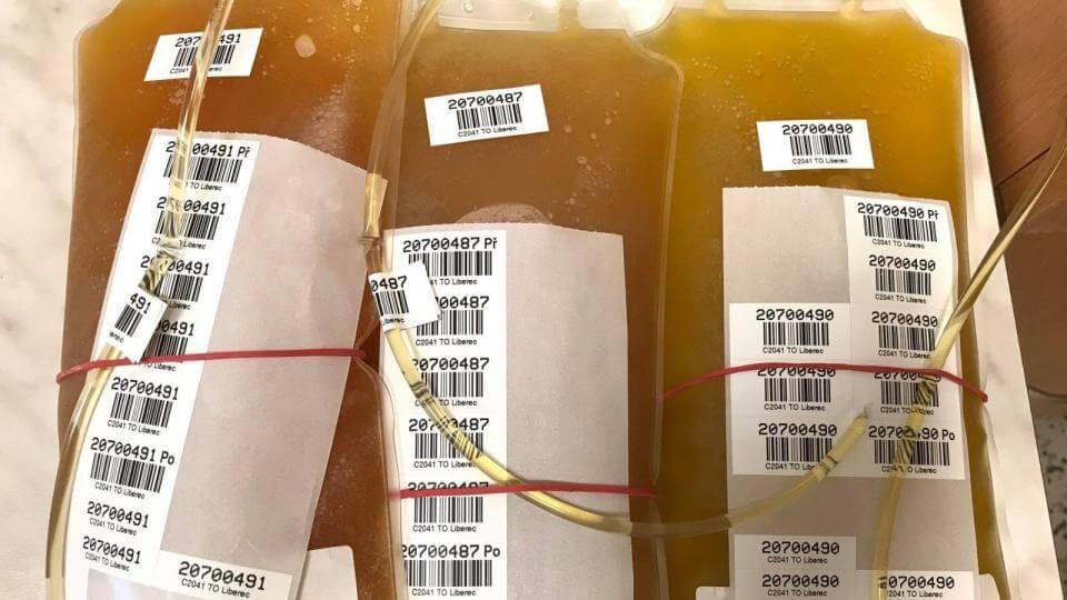 Prodělali jste v létě covid-19? Vaše krevní plazma může pomoct dalším pacientům s touto nemocí