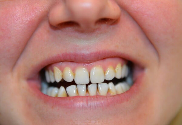 Kraj zajistil na další dva roky zubní pohotovost